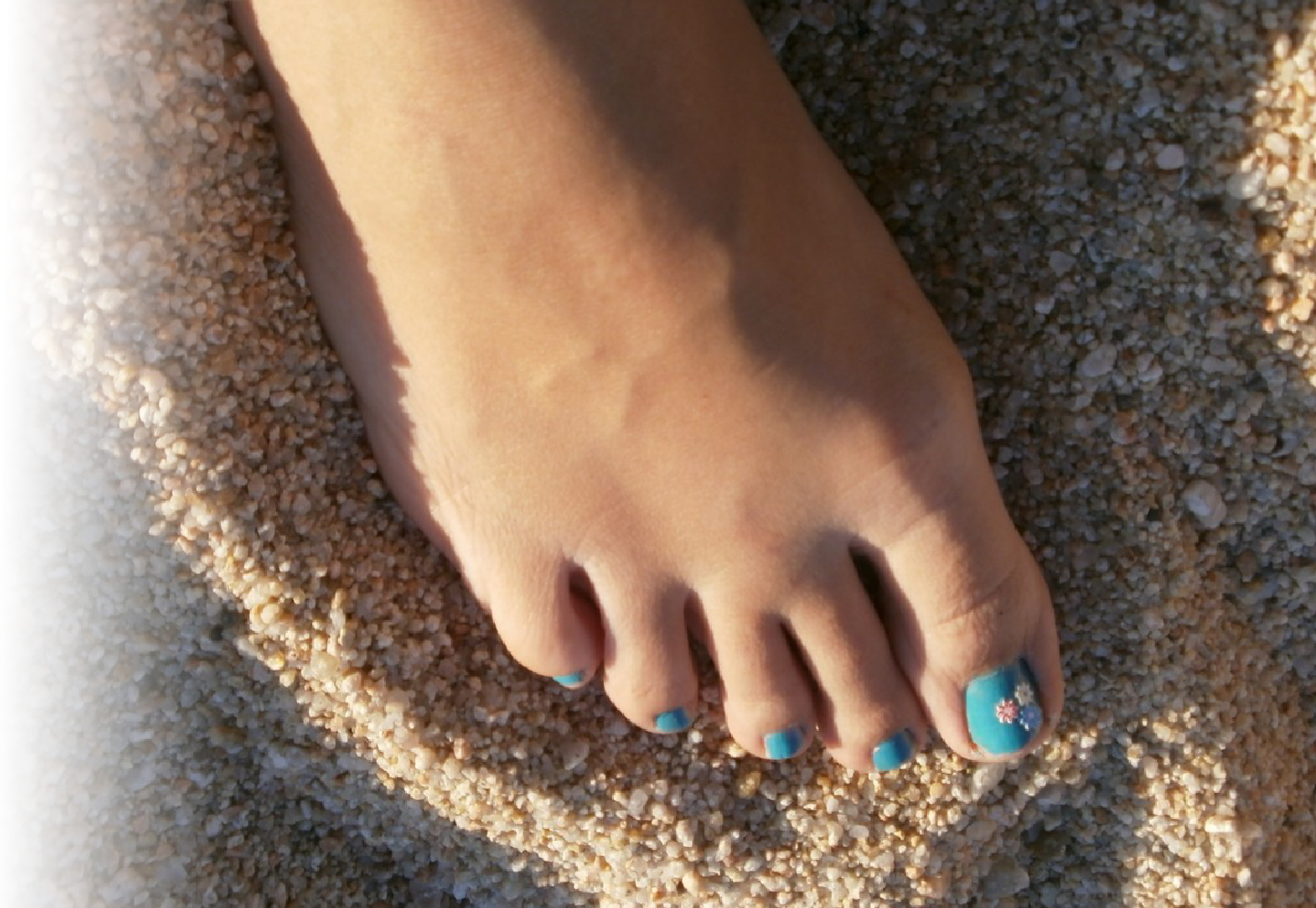How Does Amorolfine Treat Fungal Nail Infections?