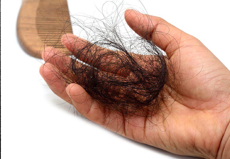 What Makes Minoxidil a Genuine Hair Loss Treatment?