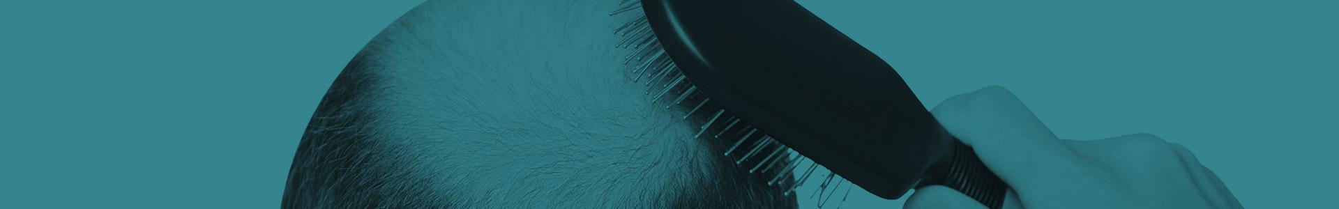 Hair Loss (Alopecia)
