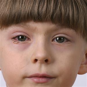 Eye Infections