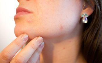 What is Acne? Your Questions Answered