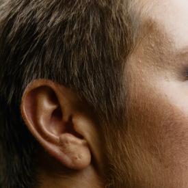 Glue Ear